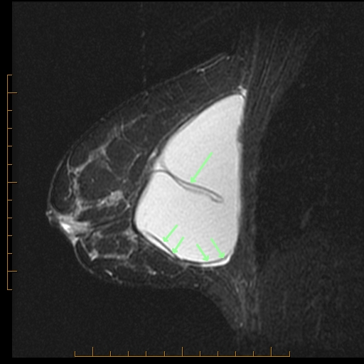 mri breast implants jpg 1200x900